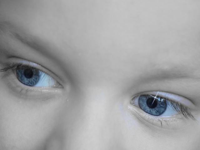 La sindrome dell'occhio pigro nel bambino, cos'è e come riconoscerla